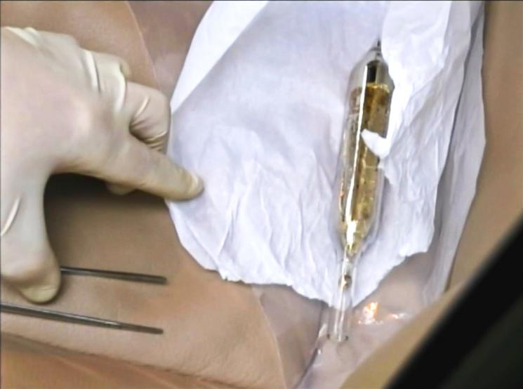 A gloved hand opens a container with a vial of gold material.